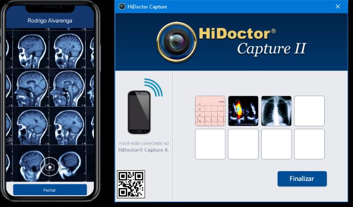Captura de imagem pelo HiDoctor® Capture