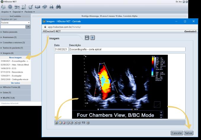 Anexar imagem pelo HiDoctor® NET