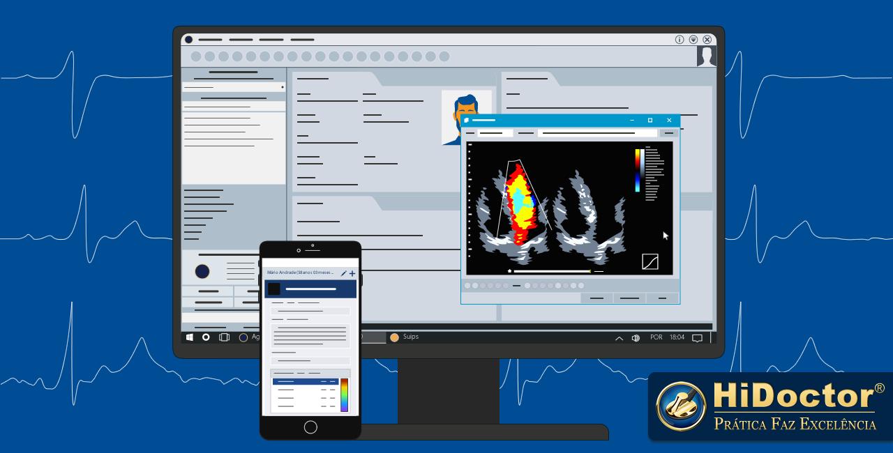 Software para cardiologia: como a tecnologia traz vantagens ao atendimento